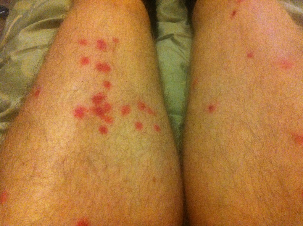 My legs post Mille Alba, bloody midges
